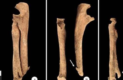 考古发现中世纪意大利武士骸骨:截肢后用刀做假肢